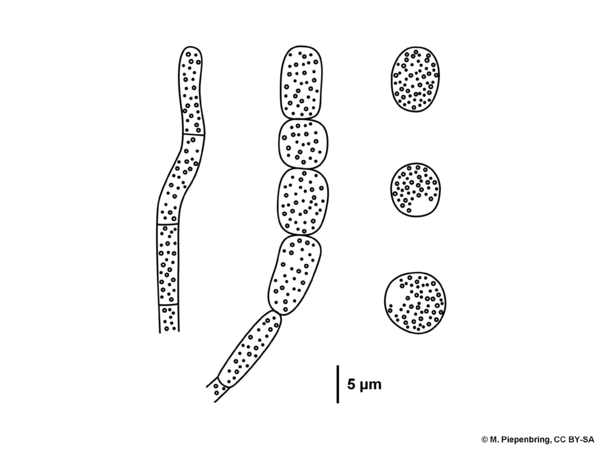 C 4b hyphae with conidia of Moniliophthora roreri, Agaricales Basidiomycota (diagram by M. Piepenbring)