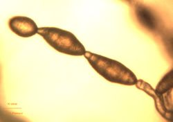 12. Conidia chain on the conidiophore.JPEG (Image by G. Pestsov)