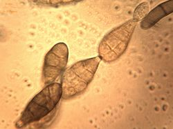 13. Conidia chain.JPEG (Image by G. Pestsov)