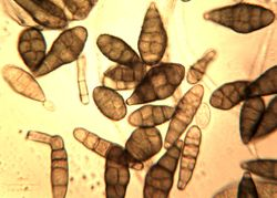 15. Diversity of the conidia sizes and colorings.JPEG (Image by G. Pestsov)