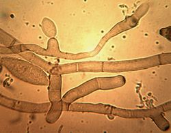 19. Conidiophores formation and beginning of conidia formation.JPEG (Image by G. Pestsov)