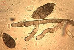 20. Conidiophores and verruculose conidia.JPEG (Image by G. Pestsov)