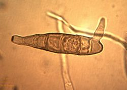 24. Conidium basal cell sprouting.JPEG (Image by G. Pestsov)