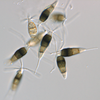 Conidia from naturally infected Erica, 63x DIC objective.