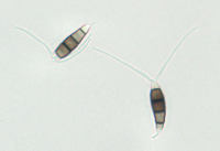 Conidia from PDA, 40x objective.