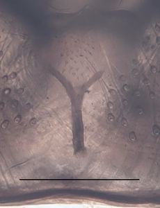Figure 5. Trichosiopsis hirsutissima male, aedeagal complex, scale 0.1 mm
