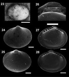Figures 23–28. Microgloma pusilla (Jeffreys, 1879) USNM 199712 23 Microgloma nhanduti sp. n. External view, leftt valve 24 IBUFRJ 15283, right valve 25 IBUFRJ 14991. Internal view holotype MNRJ 19.113, detail of the reslifer and umbo 26 right valve 27 left valve 28 Scale bars: 23 = 500 µm; 26 = 100 µm; 24–25, 27–28 = 200 µm.