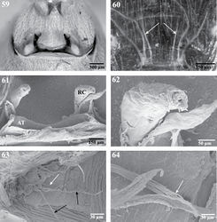 Figures 59–64. Internal anatomy of Trogloraptor marchingtoni, female (CASENT9040051) from No Name Cave. 59 vulva, dorsal view 60 female posterior respiratory system, tracheae and apodemes, with arrows to median apodemes61–64 Scanning electron micrographs of the internal anatomy 61 vulva, dorsal view, AT, atrium, RC, receptaculum 62 apex of right receptaculum 63 posterior respiratory system, dorsal view, with white arrow to median apodeme and black arrows to lateral tracheal branches; and 64 apex of apodeme (white arrow), note frayed end typical of muscle attachment. Booklungs removed from preparation in 59, 61 and 62.