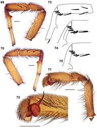 Figures 69–75. Aptostichus atomarius Simon, 1891. 69–72 Specimen AP357 from San Bernardino Co., San Bernardino; scale bar = 1.0mm 69 retrolateral aspect leg I [805733] 70 prolateral aspect leg I [805737] 71 retrolateral aspect pedipalp [805743] 72 ventral aspect palpal bulb [805745] 73–75 line drawings of spination patterns on metatarsus and tibia, leg I, retrolateral aspect 73 Los Angeles Co., Baldwin Hills (AP181) 74 San Luis Obispo Co., San Luis Obispo (AP172) 75 Los Angeles Co., Eaton Canyon Park (AP157).