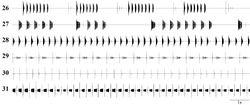 Figures 26–31. Oscillographic sound analysis: 26 Isophya dochia sp. n., Ceahlău Mountains (24°C) 27 Isophya harzi, Cozia Mountains (25°C) 28 Isophya camptoxypha, Vânători Neamţ(26°C) 29 Isophya ciucasi, Ciucaş Mountains(26°C) 30 Isophya sicula, Harghita Mountains (25°C) 31 Isophya nagyi, Călimani Mountains (25°C).