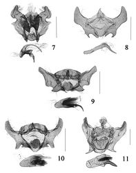 Figures 7–10. Male genitalia of Cochylis spp. 7 Cochylis discerta Razowski, slide No. SYH11644 8 Cochylis dubitana (Hübner), slide No. SYH10244 9 Cochylis faustana (Kennel), slide No. SYH11447 10 Cochylis posterana hyrcana (Toll), slide No. SYH11434 11 Cochylis triangula sp. n., paratype, slide No. SYH10200. (scales: 0.5 mm).