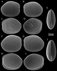 Figure 2. SEM images of Polycopetta quadrispinata sp. n. valves. A and B male paratype (SUM-CO-2095) C and D male, paratype (SUM-CO-2096) E male, paratype (SUM-CO-2097) F female, paratype (SUM-CO-2105) G female paratype (SUM-CO-2106) H and I female, paratype (SUM-CO-2107) J female, paratype (SUM-CO-2108). A right external lateral view B left external lateral view C right internal lateral view D left internal lateral view E dorsal view F right external lateral view G left external lateral view H right internal lateral view I left internal lateral J dorsal view.