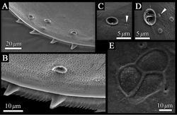 Figure 5. SEM images of the detailed structure of Polycopetta quadrispinata sp. n. valves. A male, paratype (SUM-CO-2095) B–D male, paratype (SUM-CO-2098) E male, paratype (SUM-CO-2094). A four spines at posteroventral margin of right valve B spines and fringe at posteroventral margin of right valve C pore system with circular depression D contiguous pore system E internal lateral view of adductor muscle scars of right valve. Arrowheads indicate simple pores.