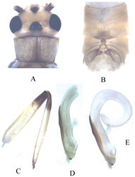 Figure 4. Neoperla mesostyla Li & Wang, sp. n. (male). A Head and pronotum, dorsal view B Terminalia, dorsal view C Hindleg (part of tarsi in this leg missing), lateral view D Aedeagus before eversion, lateral view E Aedeagus, lateral view.