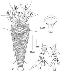 Figure 6. Phyllocoptes setalsolenidion sp. n.: V ventral view of female GM male genital region L1 leg I L2 leg II.